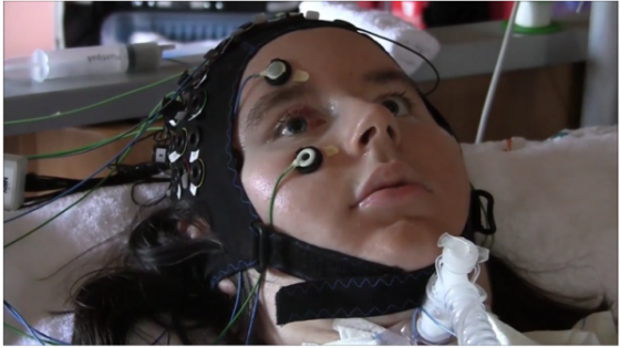 Fully paralyzed patients able to communicate via brain computer interface