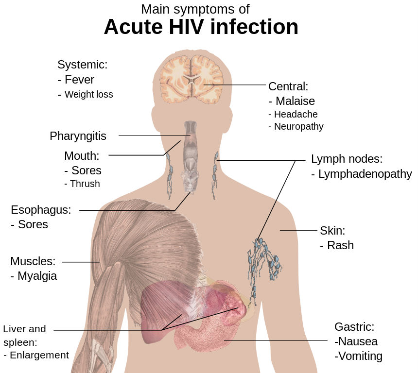 Symptoms of HIV  HIVgov