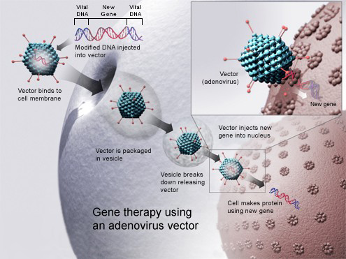 Gene therapy using an adenovirus vector